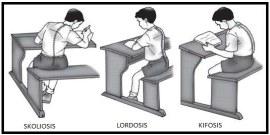 kifosis-lordosis-skoliosis